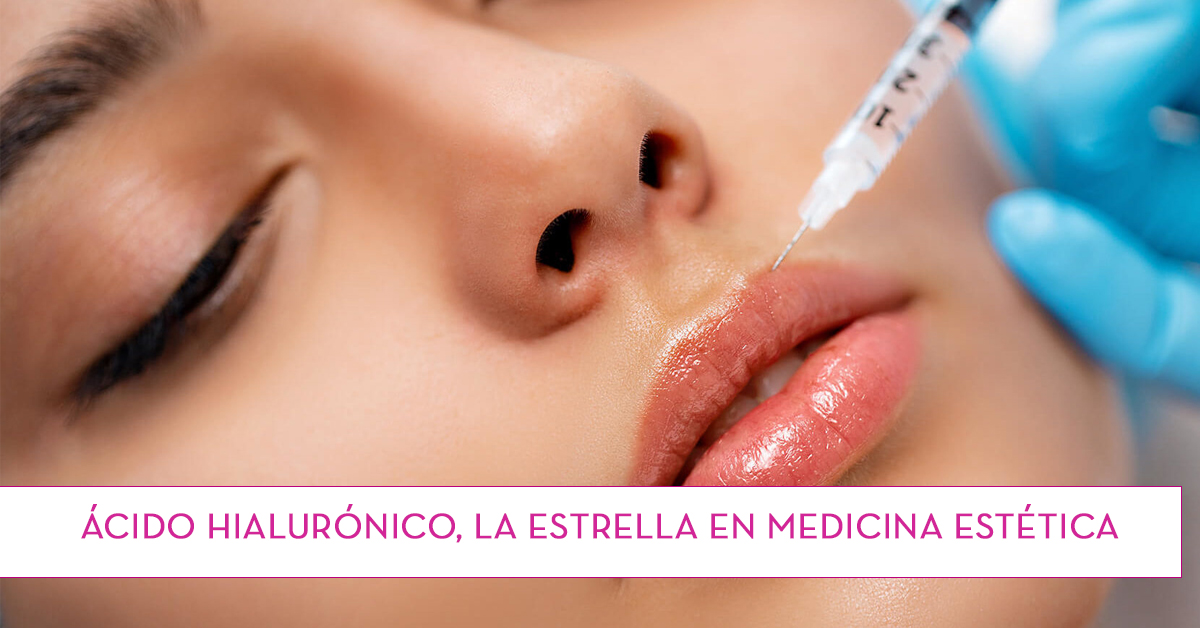 Ácido Hialurónico, la estrella en medicina estética
